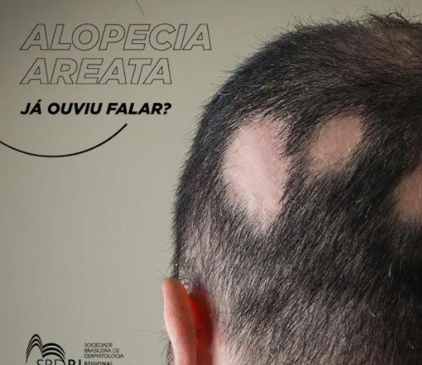 O que é alopecia areata?