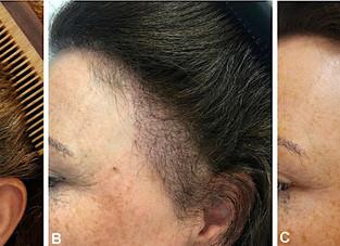 Transplante de cabelos: pode ser feito na alopecia fibrosante frontal?
