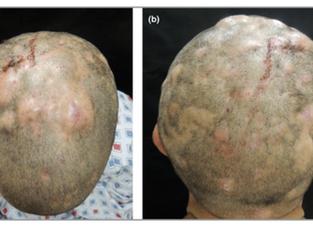 Foliculite Dissecante do couro cabeludo