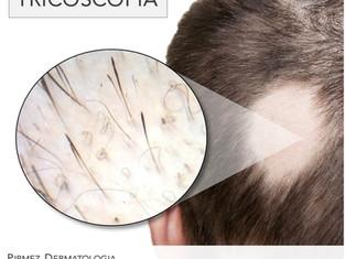 Tricoscopia para o acompanhamento da alopecia areata