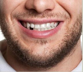"""ד""""ר, איבדתי שיניים, אז מה עושים עכשיו?"""