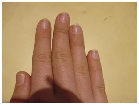 """Psoriasis: """"Cuando tus uñas te convierten en inútil"""""""