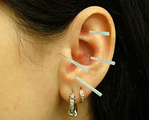 ear acupuncture, weight loss acupunture, weight control acupuncture therapy, fremont, santa clara