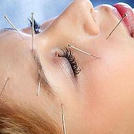 acupunctuist fremont santa clara acupuncture