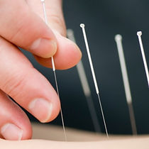 acupuncture and weight loss, weight control acupuncture santa clara, fremont weight loss acupuncture therapy