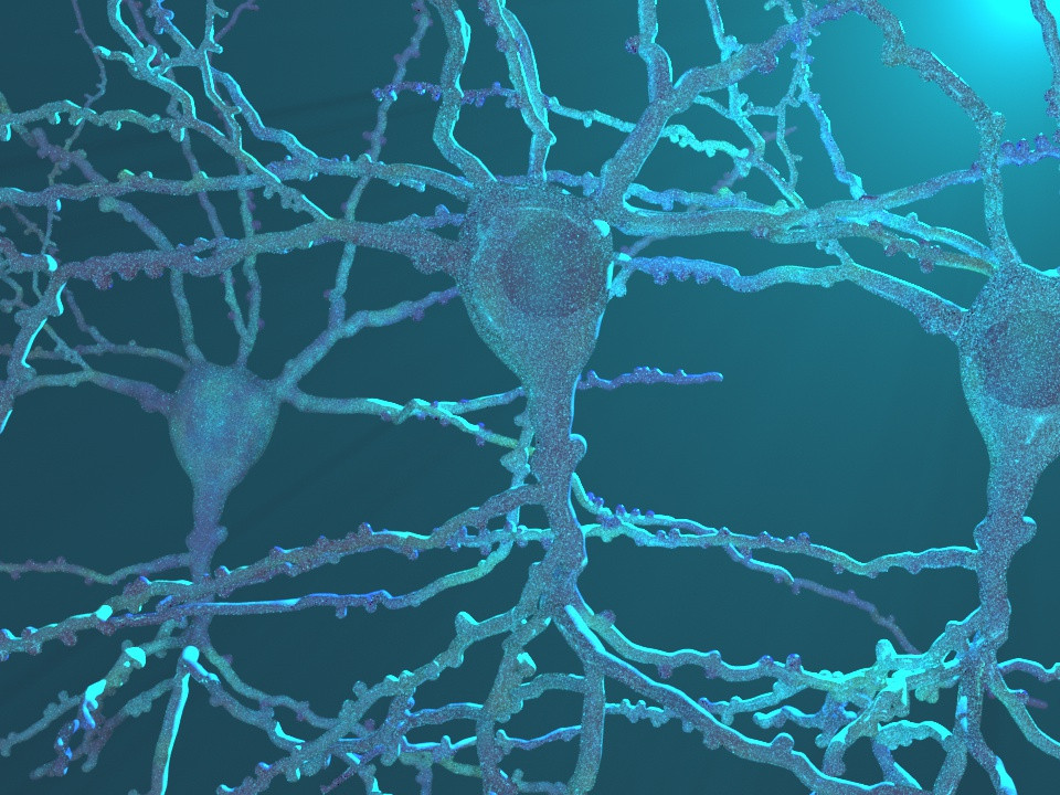 Pyramidal Neurons From Brain Donor