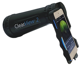 ClearView 2