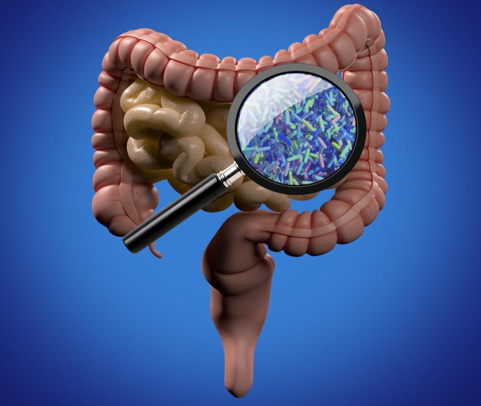 gut microbiota analysis