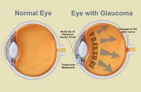 glaucoma.jpeg