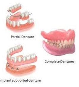 denture.jpg