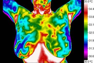 5 ADVANTAGES OF OPTING FOR BREAST THERMOGRAPHY SCREENING
