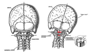 What is Subluxation and Why Is It The Most Important Health Discovery!