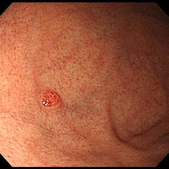 ラズベリー型胃がん.jpg