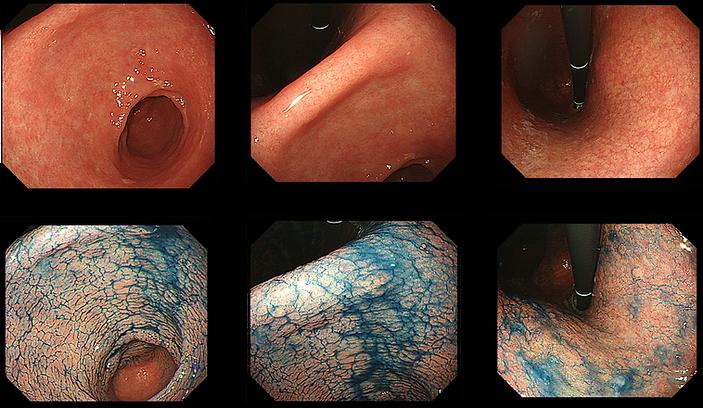 苦痛のない胃カメラで微小早期がんを、拡大NBI機能付きの胃カメラと高い診断能力により発見できます。
