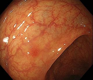 大腸Ⅱc病変、陥凹型病変が質の高い内視鏡により、苦痛のない内視鏡により発見できます。
