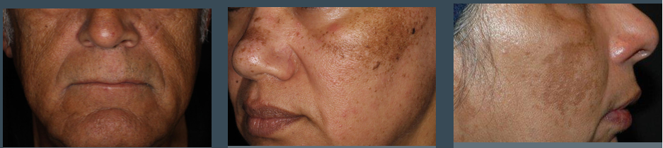 before treating with Environ products and facials