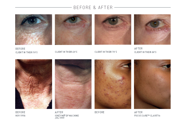 Before and after pic with Environ