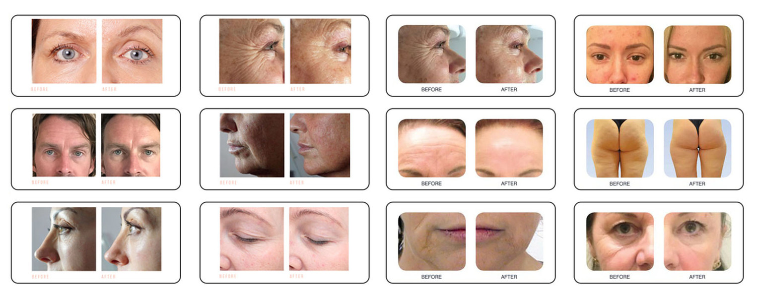 CACI body and face