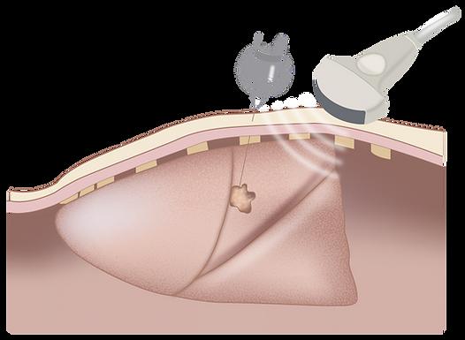 Biopsia pulmon.png