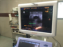 Ultrasound in the Operating Room
