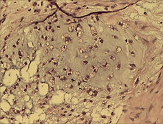 Histopathology slide showing Metasplastic type Breast Carcinoma