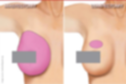 Mastectomy versus Lumpectomy