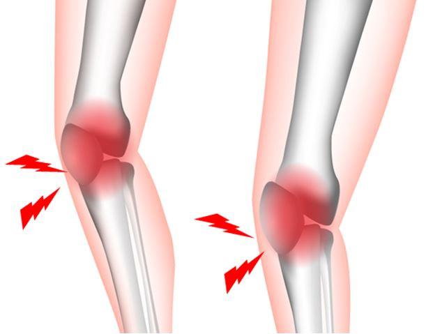 ひざの痛み -オスグッド・シュラッター病-