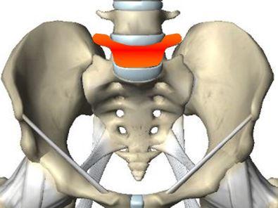 こしの痛み -腰椎分離症-