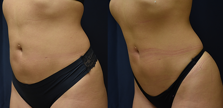 SculpSure after 1 treatment