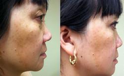 PicoSure Skin Revitalization