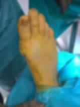 podczas zaszywania rany