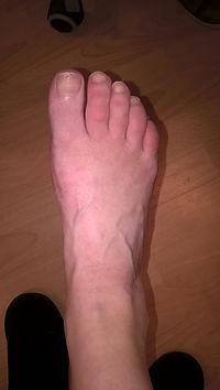 haluxy ortopeda wyniki
