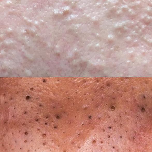 Comedone acne