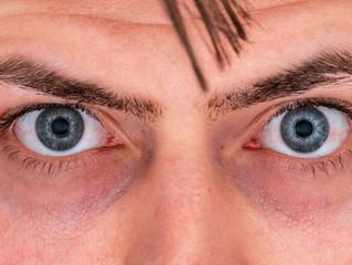 Why Do I Have Dark Purple Under My Eyes?