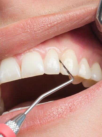Parodontologie.jpg