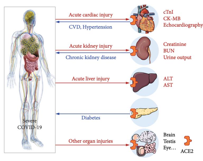 Schematische weergave uit het onderzoek van de vermeende associatie tussen ernstige COVID-19 en reeds bestaande chronische ziekten en aangetaste organen. De blauwe lijn geeft het verband aan tussen reeds bestaande chronische ziekten en de ernst van COVID-19. De rode lijn geeft orgaanletsel aan dat is waargenomen bij COVID-19-patiënten.