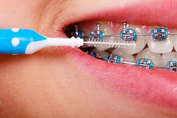 cleanbraces-1170x779.jpg