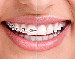 how-to-look-after-your-fixed-braces-2.jp