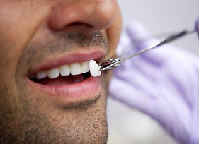 cosmetic-dentistry-london-southwood-dent
