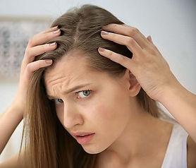 hairloss (1).jpg