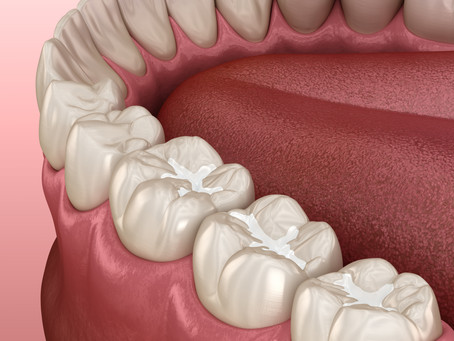Dental Sealants Can Help Cavity-Prone Teeth! Learn More From Your Family Dentist in Seattle, WA