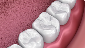 Dental Sealants Can Help Cavity-Prone Teeth! Learn More From Your Family Dentist in McKinney, Texas