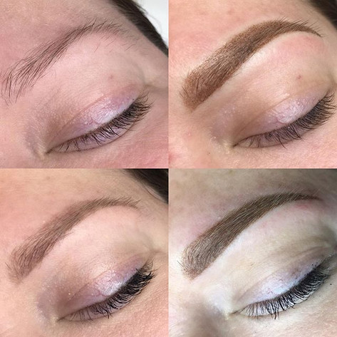 Before, Immediately after 1st session, H