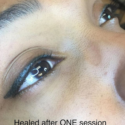 Eyeliner goals! Healed after one session