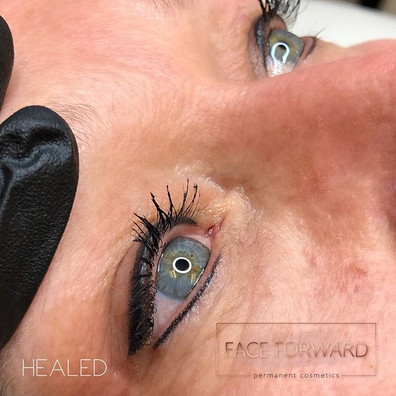 Healed Liner! 💥_We started thinner and