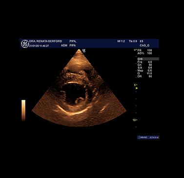img-ecocardiografia-02.png
