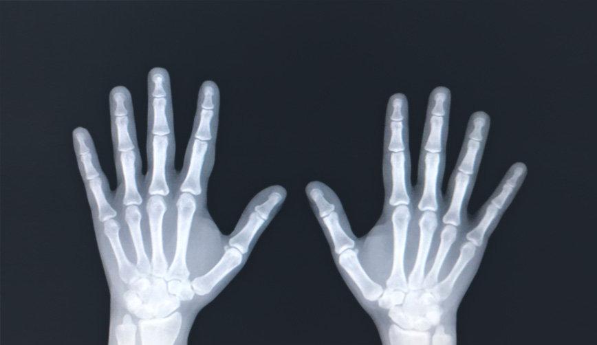 radiografia-mao-03.jpg