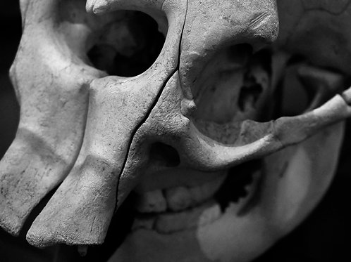 Lacuna Cliffs (SKULL 12): Archival Anatomical Photo Print in Black and White