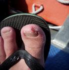 Cuidados com pequenos ferimentos