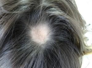 Alopecia Areata.png